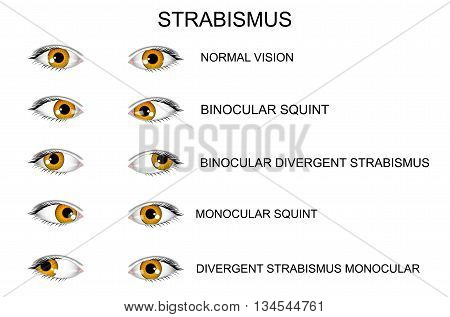 illustration of a healthy eye and types of strabismus.