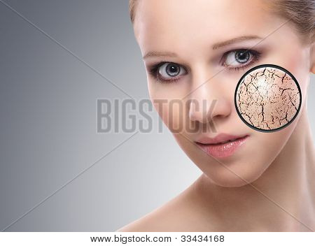 Concept Of Cosmetic Effects, Treatment And Skin Care.  Face Of Young Woman