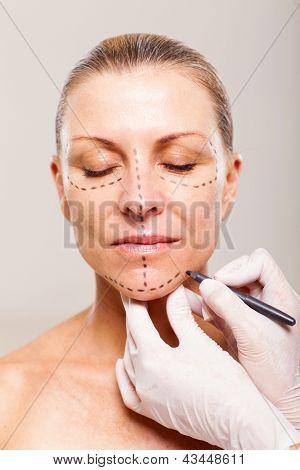 doctor draw correction line on a patient before cosmetic surgery