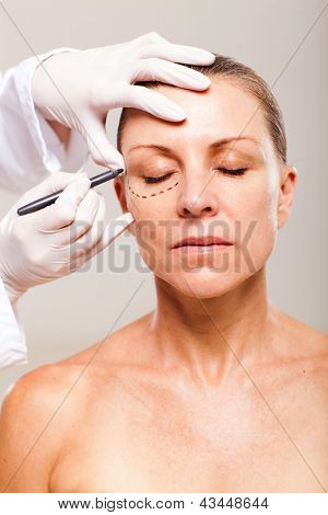 doctor draw correction lines on senior woman face before plastic surgery