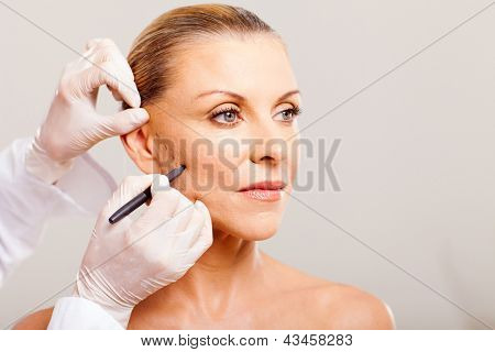 cosmetic surgeon drawing lines on senior woman face for plastic surgery close up