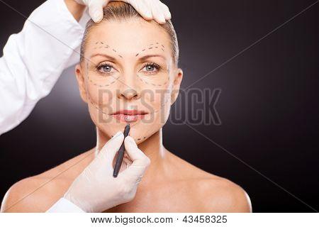 idade média marca de mulher com correção de cirurgia plástica