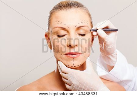 middle aged woman with correction lines before cosmetic surgery