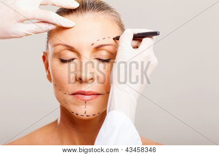senior woman with correcting marks before face lifting