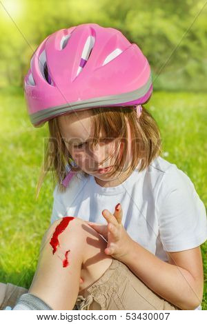 Preschool roller skate beginner looking at her bleeding knee