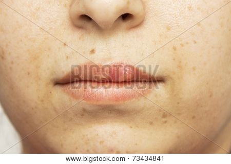 herpes oral cold sore blisters on the lips- herpes simplex