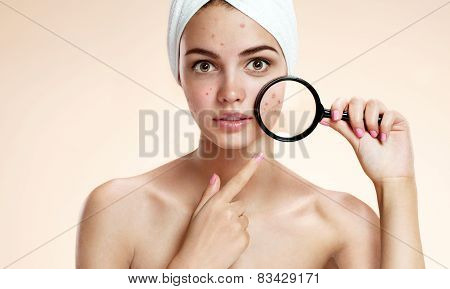 Teen girl with problem skin look at pimple with magnifying glass.