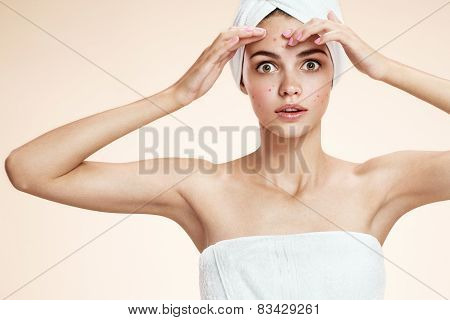 Girl squeezing her pimples, removing pimple from her face.  Woman skin care concept