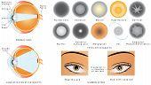 stock photo of cataract  - Eye disease cataract - JPG