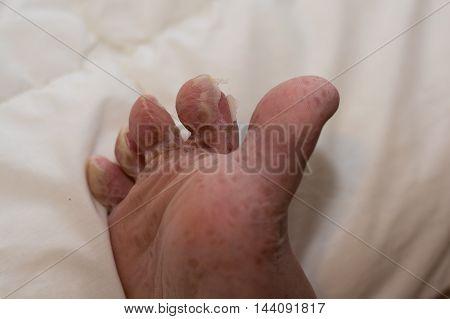 Peeling skin after viral skin disease - Close-up Foot