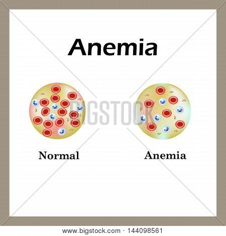 Anemia. The reduced amount of red blood cells. Infographics. Vector illustration.