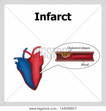 Heart attack. Atherosclerosis. Thrombus. Artery-clogging cholesterol. Cholesterol plaques Infographics Vector illustration