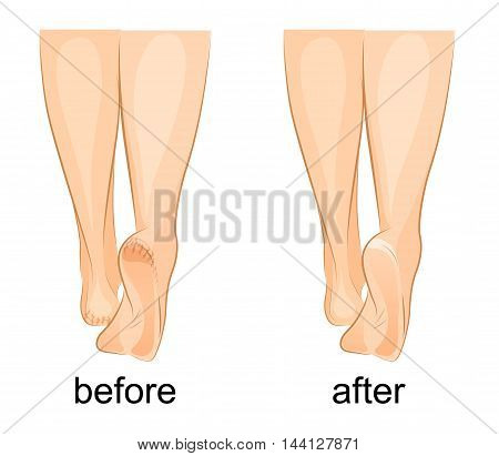 illustration of a female feet cracked heels and healthy