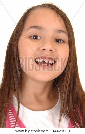 Girl Loosing Her Teeth.