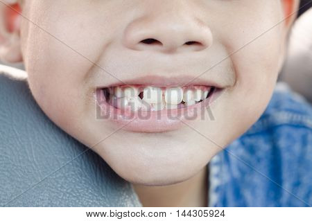 Child Tooth Decay.