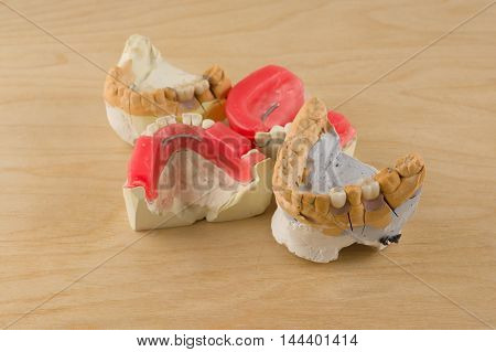 Dental Prosthesis Manufacturing Step