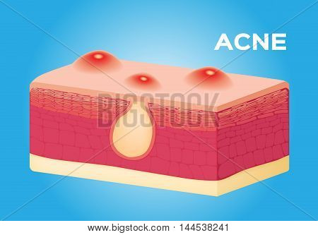 acne vector on skin , anatomy on blue background