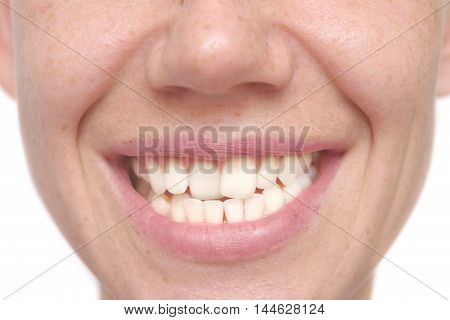 close up shot of a crooked teeth
