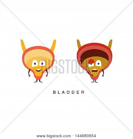 Healthy vs Unhealthy Bladder Infographic Illustration.Humanized Human Organs Childish Cartoon Characters On White Background