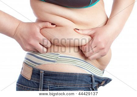 Fat Woman Picks Up A Thick Layer Of The Stomach. On A White Background.
