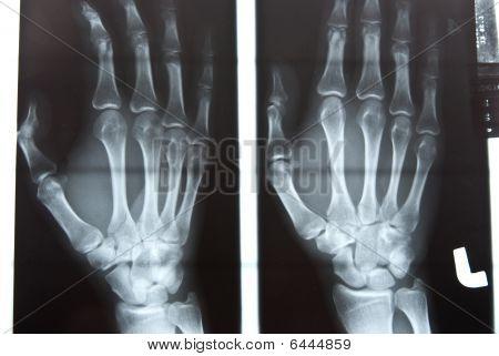 Human Hand Xray Image