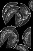 picture of mammogram  - Lateral mammogram of female breast - JPG