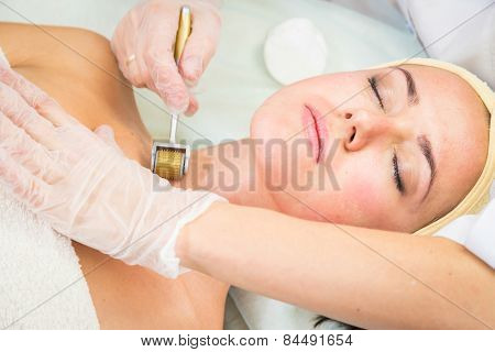 Medical cosmetic procedure.