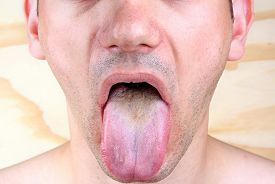 pic of syphilis  - Bacterial infection disease tongue in a man - JPG