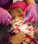 Child In Pain At Dentist