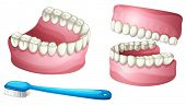 picture of false teeth  - illustration of denture and tooth brush on a white background - JPG