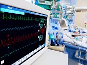 picture of electrocardiogram  - Pediatric ICU with ECG monitor on foreground - JPG