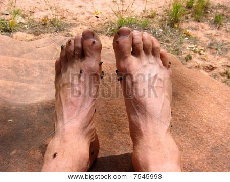 Smelly Feet With Flies