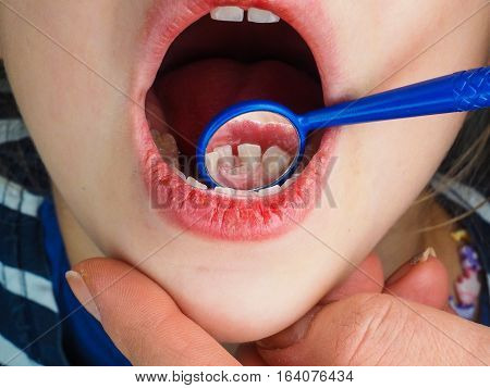 Little Girl At The Dentist Examining A Lose Tooth With A Dental Mirror