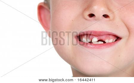 Closeup of a child's smile with missing teeth