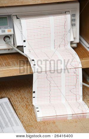 Um eletrocardiograma imprimir em um hostital