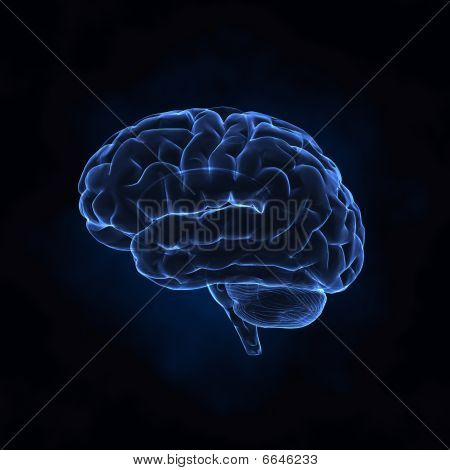 Cerebro de rayos x