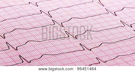 Cardiogram Of Heart Beat
