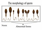 picture of sperm cell  - The morphology of the sperm - JPG