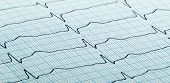 stock photo of electrocardiogram  - cardiogram (aka electrocardiogram aka ECG) of heart beat on blue grid paper