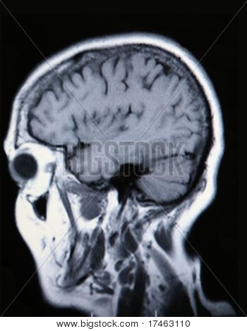A real MRI/ MRA (Magnetic Resonance Angiogram) of the brain in monochrome