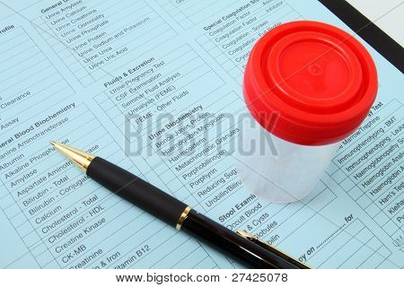 Urine test - medical checkup