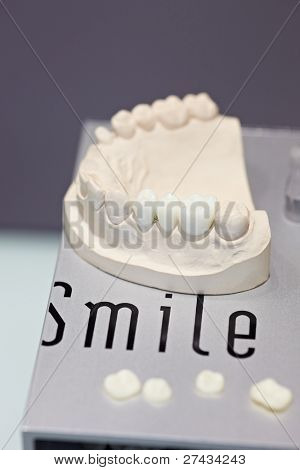 COLOGNE - MARCH 22: Three artificial teeth on a working denture model by Swiss manufacturer SMILE LINE on display at the IDS Dental Industry trade show in Cologne, Germany on March 22, 2011.
