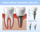 Dental Teeth Implant. Implantation Procedure Or Tooth Crown Abutments. Health Care Vector Illustrati poster