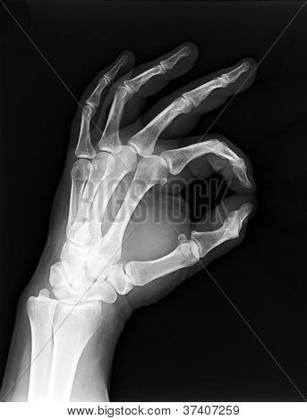 Mão de raios-x