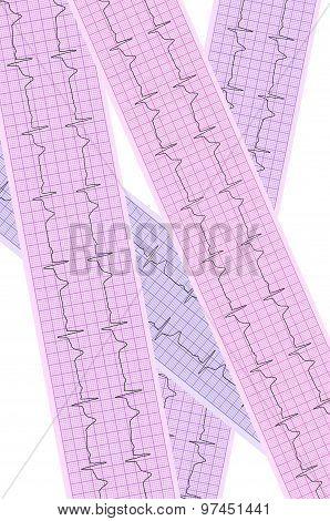 Heart Analysis, Electrocardiogram Graph (ecg)
