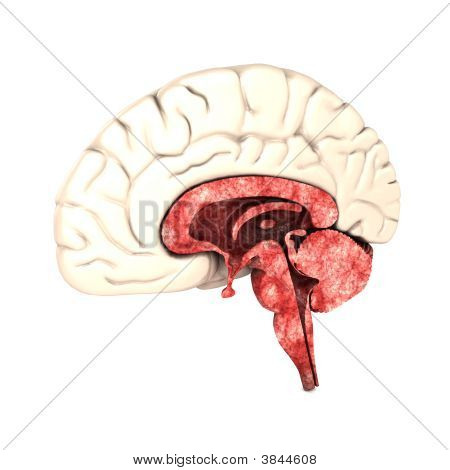 halbes Gehirn