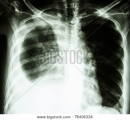 Pleural Effusion Due To Lung Cancer