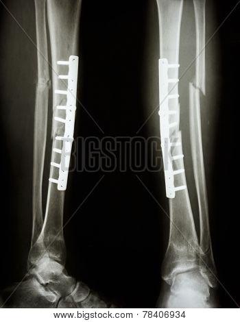 Fracture Shaft Of Tibia And Fibula