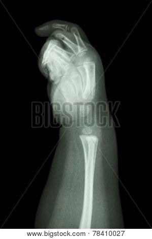 Normal Infant's Hand Bone