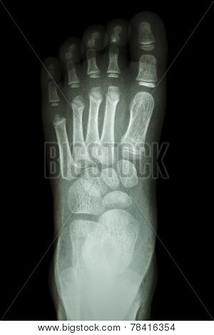 X-ray Foot Ap : Show Normal Child's Foot